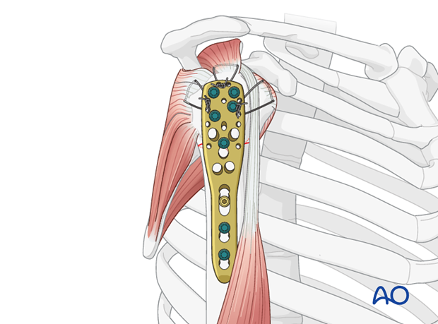 Secure the tendons of the rotator cuff with additional tension band sutures through the small holes in the plate.