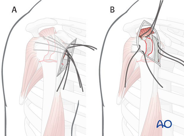 It is easier the further lateral of an approach is used. A) shows an deltopectoral approach and B) an anterolateral approach.