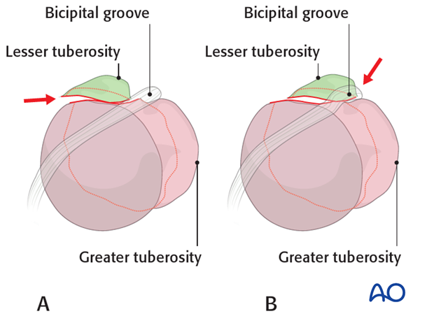Lesser tuberosity, suture reduction and fixation