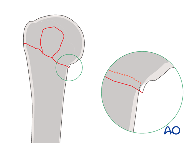 In osteoporotic bone, stability may be increased by leaving slight medial impaction of the humeral head