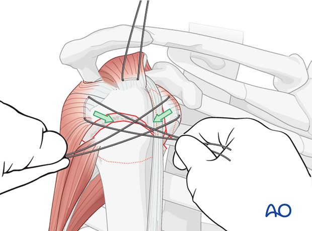To reduce the lesser tuberosity, pull the sutures between the subscapularis and the infraspinatus horizontally ...