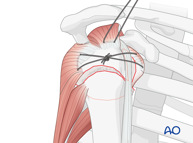 Reduce and fix the lesser tuberosity to the humeral head (thereby converting the 3-part fracture into a 2-part situation)