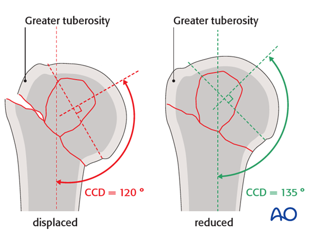 The centrum column diaphyseal (CCD) angle should be 135°.