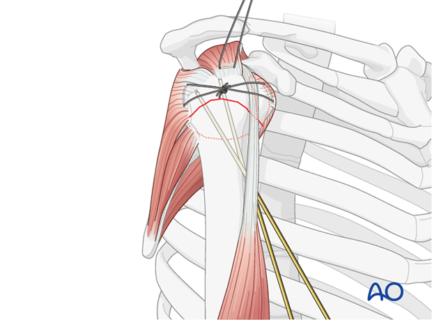 After its reduction, the humeral head is preliminarily fixed to the shaft using two K-wires.