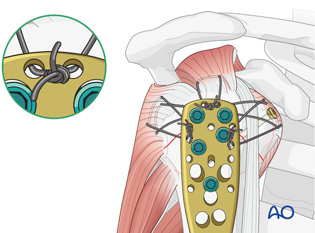 Sutures placed through the insertions of each rotator cuff tendon increase stability and should also be used.