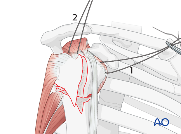 Once the shoulder is reduced, insert sutures into the insertion fibers of subscapularis tendon (1) and the supraspinatus tendon