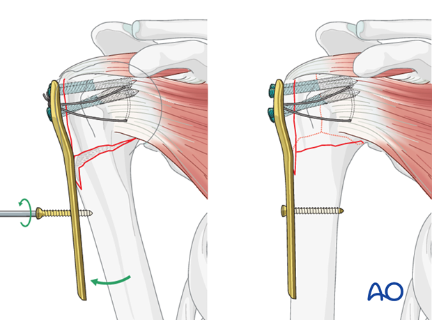 Alternatively, one can fix a plate laterally to the humeral head, reduce the humeral head with the help of a plate.