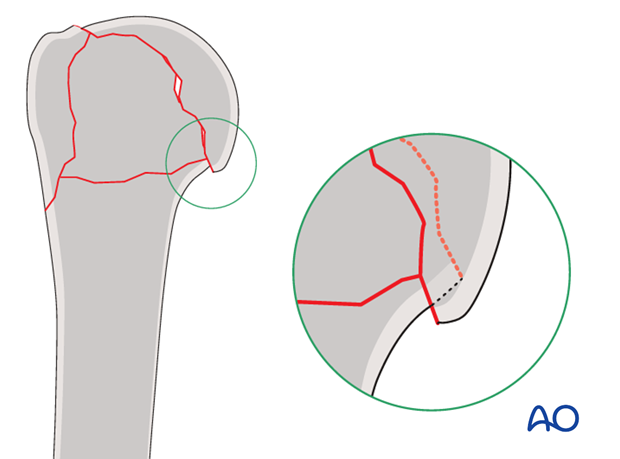 In osteoporotic bone, stability may be increased by leaving medial impaction of the humeral head.