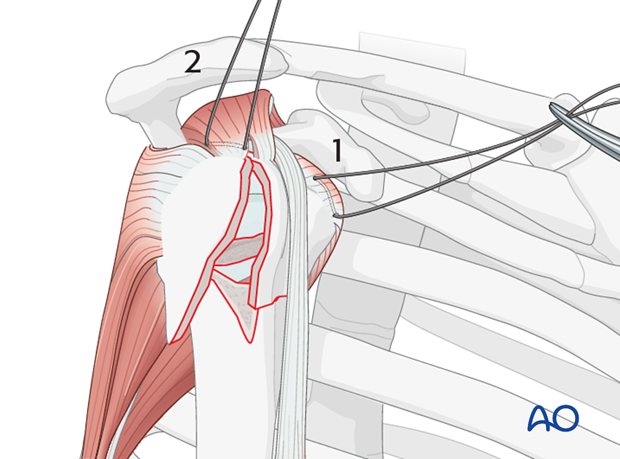Begin by inserting sutures into the insertion fibers of subscapularis tendon (1) and the supraspinatus tendon (2).