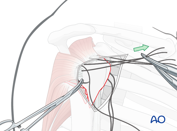 Expose the proper location for a suture in the infraspinatus tendon insertion