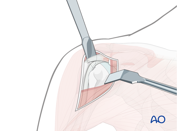 Use of blunt, curved Hohmann retractors underneath the deltoid muscle can be helpful to expose the humeral head.