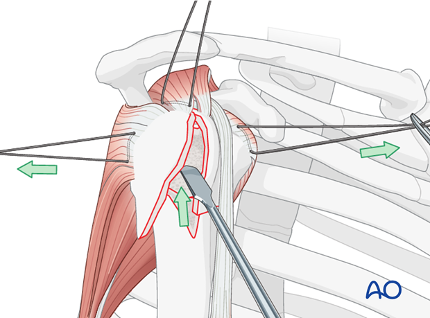 Correct the valgus impaction by elevating the lateral aspect of the humeral head