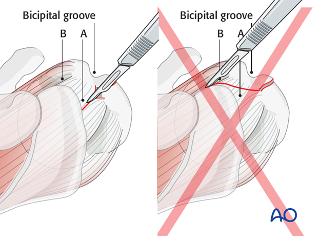 Note: If a cranial extension is needed, it should be carried into the supraspinatus tendon (A) and not into the rotator interval