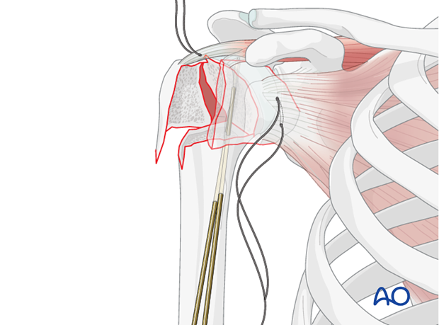 It might still be advantageous to secure the humeral head using 2 or 3 K-wires