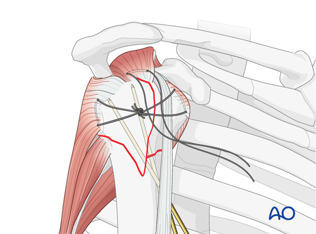 Sutures in the rotator cuff tendon insertions aid manipulation, reduction, and temporary fixation of a proximal humerus fracture