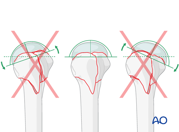 Check that there is no anteversion or excessive retroversion of the humeral head.