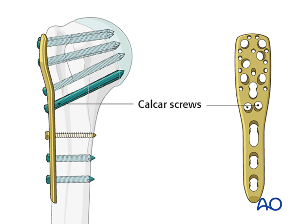 "It is strongly recommended to use ""calcar screws"" in all varus displaced fractures, especially, if there is medial fragmentation"