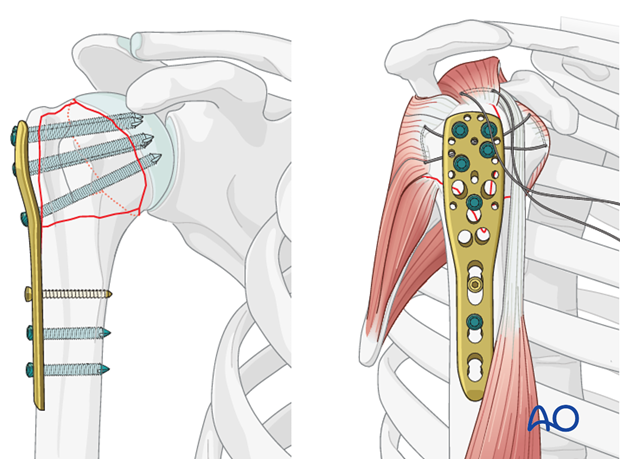 Insert one or two additional bicortical screws into the humeral shaft.