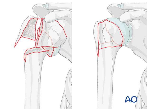 Elimination of the varus deformity of the humeral head is key in this procedure.