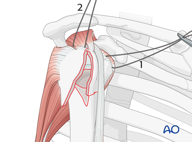 Begin by inserting sutures into the insertion fibers of subscapularis tendon (1) and the supraspinatus tendon (2)