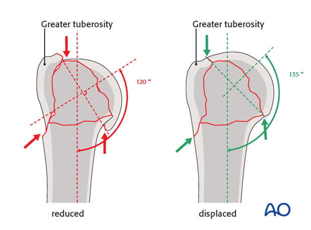 Confirm the inclination of the humeral head.