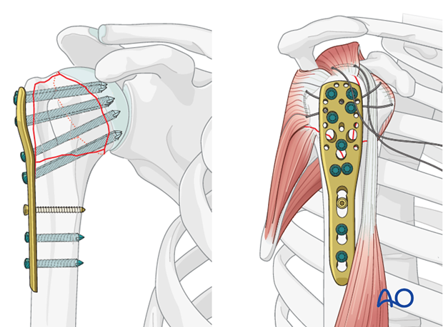 In order to stabilize the humeral head appropriately, sufficient calcar support (screws) is necessary.