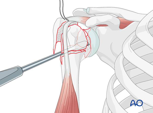 Reduce the humeral head split using digital pressure, periosteal elevators, and/or partially threaded pin(s) in either head ...