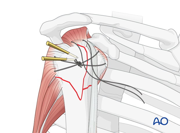 The horizontal suture between the infraspinatus and the subscapularis tendons closes the tuberosities underneath the humeral ...