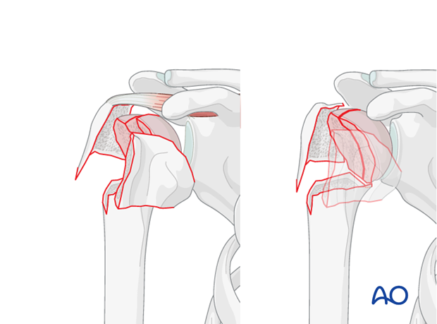 Anatomic (step-less) reduction of the humeral head fragments is key in this procedure.