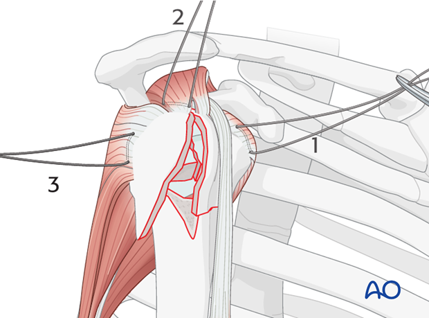 Next, place a suture into the infraspinatus tendon insertion (3)