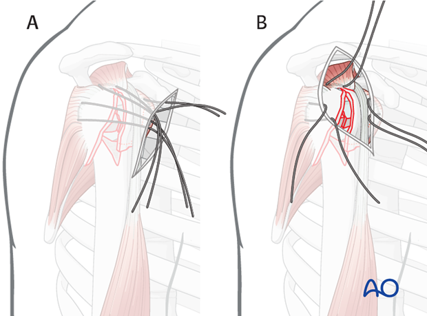 It is easier the further lateral of an approach is used. A) shows an deltopectoral approach and B) an anterolateral approach