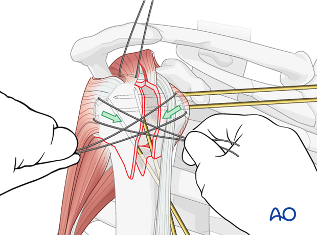 Pull the sutures between the subscapularis and the infraspinatus tendons horizontally ...