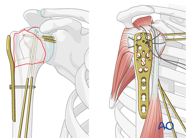 Attach the plate to the humeral shaft with a bicortical small fragment 3.5 mm screw inserted through the elongated hole.