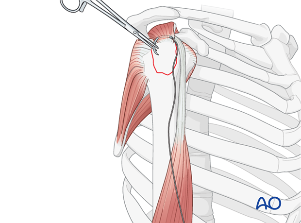 Suture insertion into rotator cuff tendon