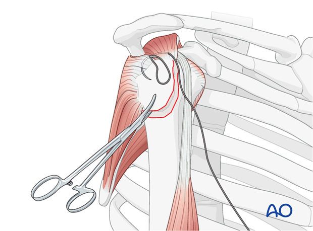 Insert stay sutures through the supraspinatus, and if necessary, the infraspinatus tendon.