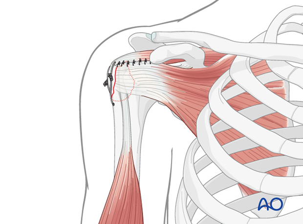 Sutures to close rotator cuff interval