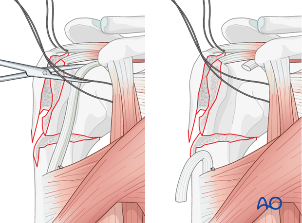 Temporarily attach the bicipital tendon to the superior border of the major pectoralis.