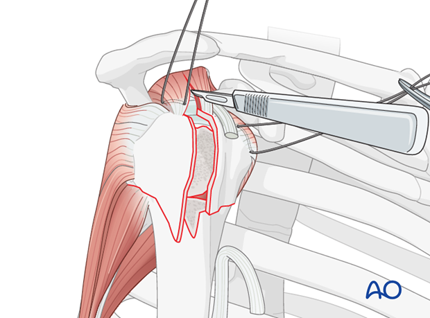 Divide the soft tissues over the fracture, and extend this incision along supraspinatus muscle fibers as shown.