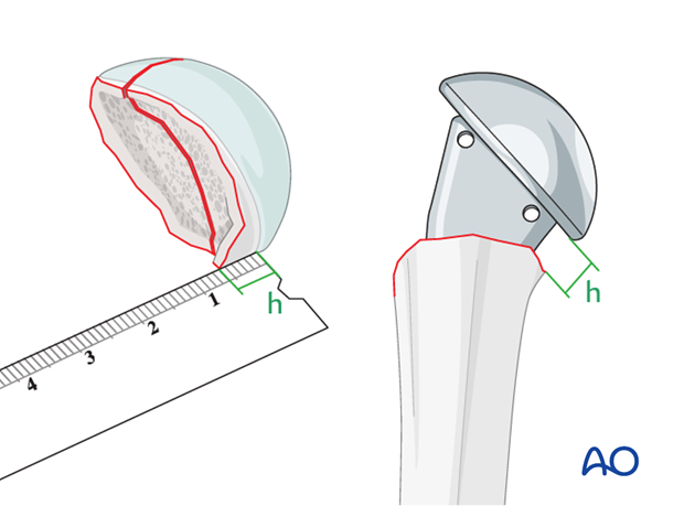 The posteromedial metaphyseal extension (h) determines the implantation height of the prosthesis.