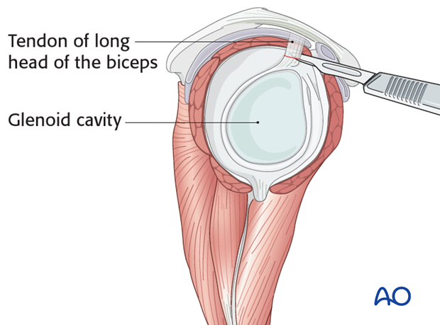 Inspect the glenoid fossa in order to rule out any injury.