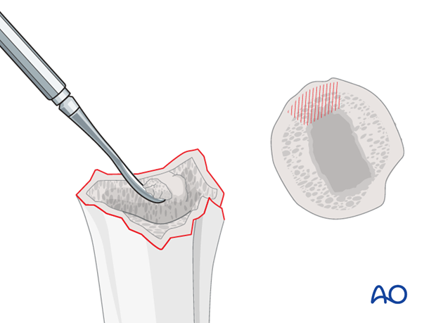 Pearl: cancellous bone removal
