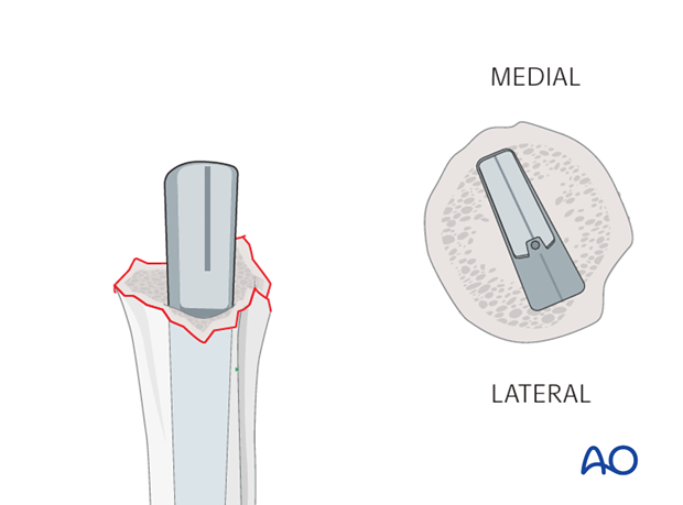 Pearl: Prosthesis with pronounced calcar design