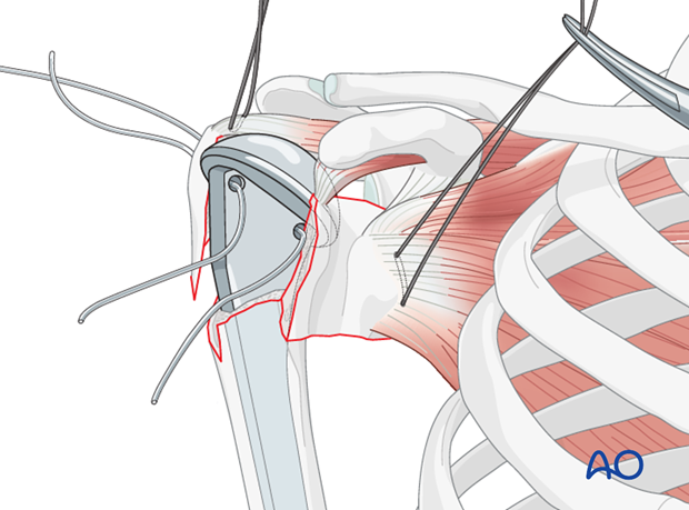 Pass the tuberosity cables through the corresponding holes in the prosthesis.
