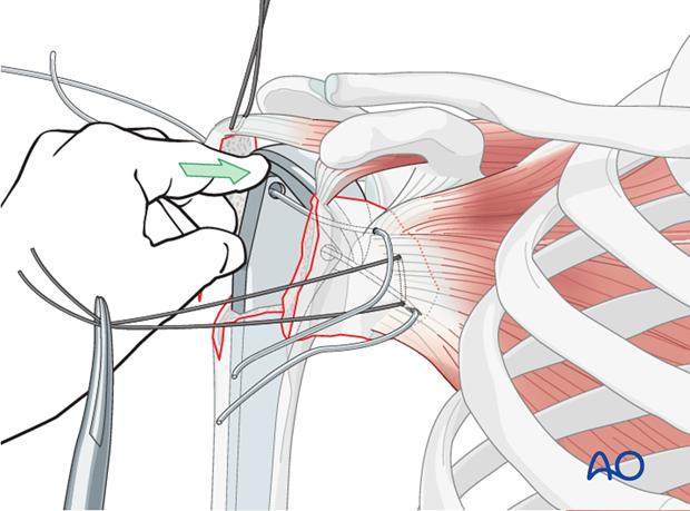 Reduce the glenohumeral joint and preliminarily reduce the tuberosities under the flange of the prosthetic humeral head.