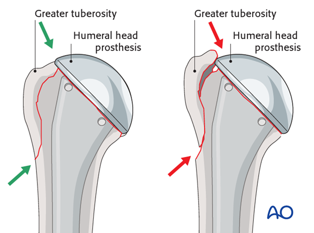 The inferior spike of the greater tuberosity should fit snugly into the fracture gap. This would be revealed by visual control.