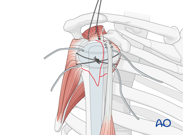 Place the bicipital tendon into the bicipital groove and preliminarily fix it with sutures.