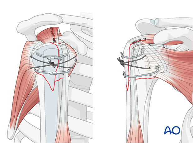 Tighten the two tuberosity cables and fix them appropriately over the bicipital tendon