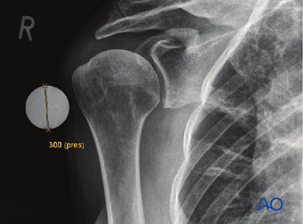 If an x-ray is used to determine the size of the humeral head use a marker ball to compensate for radiological magnification.