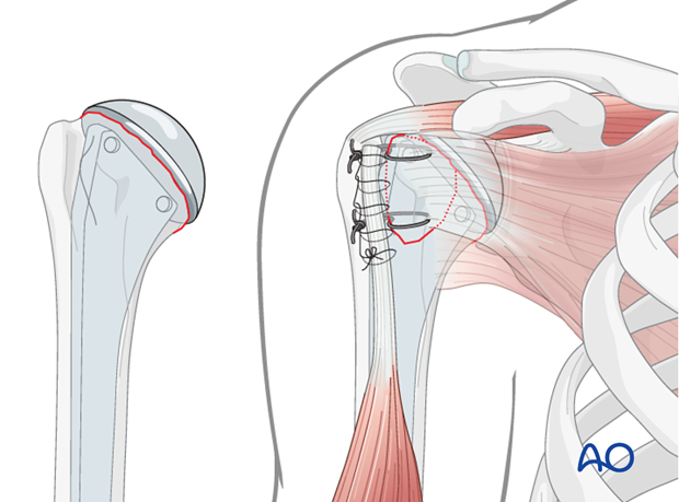 isolated anatomical neck dislocation