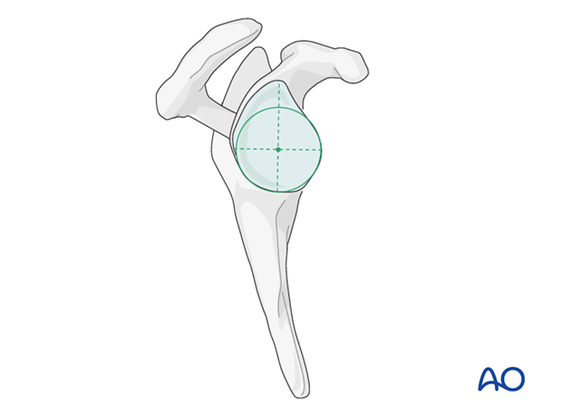 reverse arthroplasty